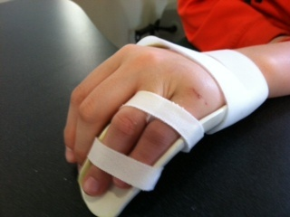 Hand Based Orthotic For P1 Fx Small Finger Used To