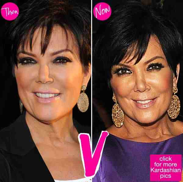25 Best Ideas About Kris Jenner House On Pinterest: Best 25+ Kris Jenner Plastic Surgery Ideas On Pinterest