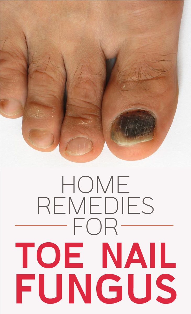 http://mkthlth2.digimkts.com  I was scared to where open toes  toe fungus fungal infection  The 5 Top-Most Home Remedies For Toenail Fungus