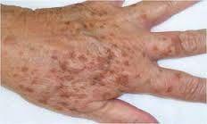 Αποτέλεσμα εικόνας για γεροντικό δέρμα