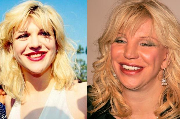 862 Best Images About Celebrities With Plastic Surgery