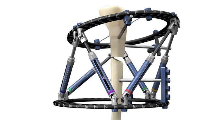Smart Correction is Computer Assisted Circular Hexapod External Fixator with radiographic navigation software for deformity correction & fracture reduction.