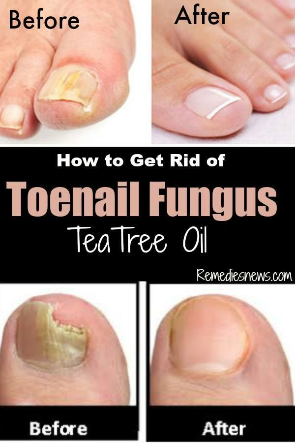 How to Get Rid of Toenail Fungus with Tea Tree Oil (Fast Remedy ...