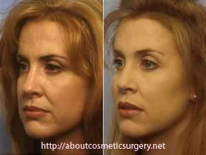 Cheek Implants Before and After Procedures  Cheek implants to improve the shape of cheek sagging due to aging or other causes. Cheek implants can be done in various ways: by using synthetic materials such as Alloderm, silicon, or Gore-tex. go to http://aboutcosmeticsurgery.net/facial-treatment/cheek-implants-before-and-after-procedures/