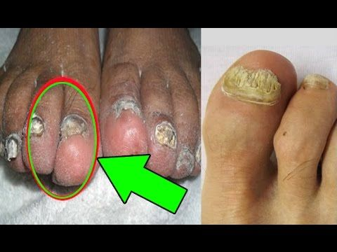 Goodbye to nail fungus in 5 days With this trick thanks to this secret from Madagascar - YouTube