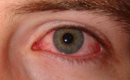 The issue of pink eye during pregnancy ought to be dealt with without delay. This extremely contagious condition takes place when the underside of the eyelids ends up being irritated but the membranes over the whites of the eyes might also be affected. Pink eye, or conjunctivitis, can be caused by an infection, a bacterial …