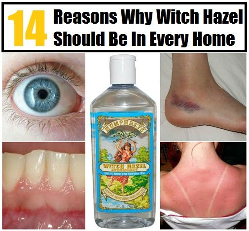 Witch Hazel has so many great uses! If you haven't used it before, you should definitely pick some up :-)