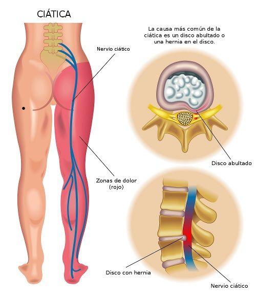 CIatica. La ciática es la irritación del nervio ciático por compresión del nervio o hernia discal en la zona lumbar o sacra como causas más comunes. Cursa con dolor, debilidad, entumecimiento y/o hormigueo por todo el recorrido del nervio, es decir, zona lumbar, nalgas, parte posterior del muslo y parte posterior de la pierna, llegando al talón.