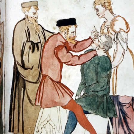 10 Excruciating Medical Treatments from the Middle Ages (medieval medicine) - ODDEE