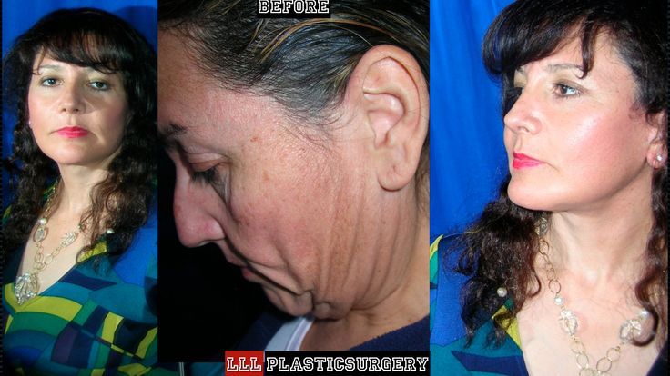 CIRUGIA PLASTICA ESTETICA FACIAL MULTIPLE EN PACIENTE POST-CIRUGIA BARIATRICA. HECHO EN CD. JUAREZ CHIHUAHUA.MEXICO lll@lllplasticsurgery.com lllplasticsurgery1@hotmail.com  WWW.LLLPLASTICSURGERY.COM