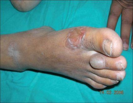 Richtlijnen behandeling van voeten : Bullosis diabeticorum
