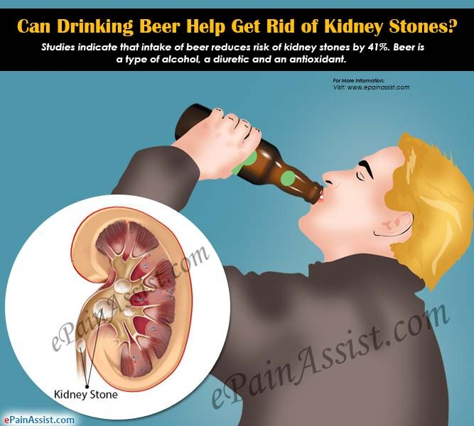 Can Drinking Beer Cause Kidney Stones
