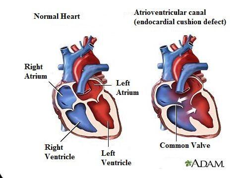 7 Heart Murmur Symptoms You Should Know!