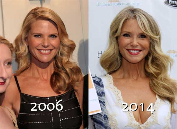 has christie brinkley ever had plastic surgery