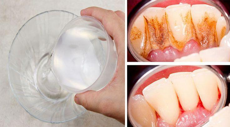 Portal Dicas e Truques: Bochecha durante 1 minuto com esta receita caseira e elimina a placa e o tártaro dos dentes!