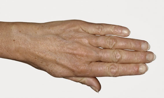 Før behandling. De første aldringstegn vises ofte på hendene. Restylane gjør hendene yngre.