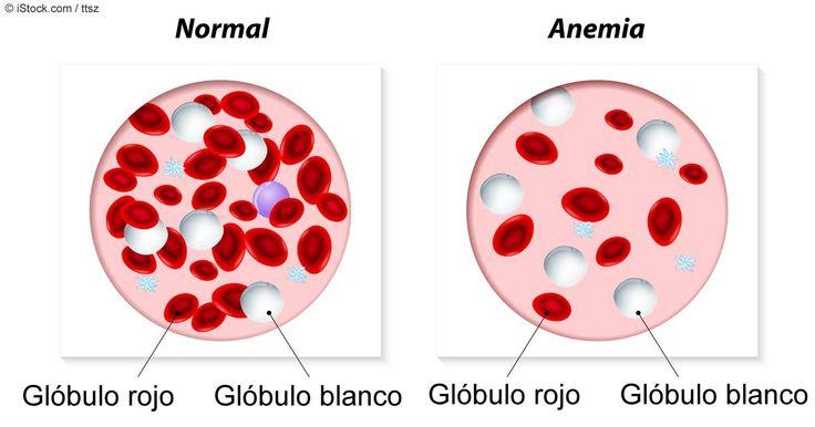 Es probable que conozca los peligros de la anemia, pero ¿sabía que tener demasiado hierro podría tener un efecto profundamente peligroso en su salud? http://articulos.mercola.com/sitios/articulos/archivo/2015/08/10/secretos-poco-conocidos-sobre-los-niveles-de-hierro.aspx