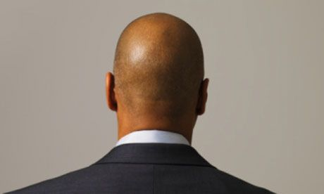 What Are Common Causes Of Male Balding