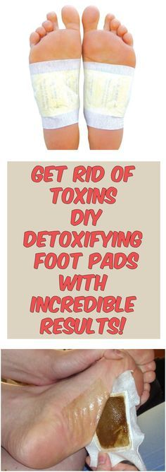 Get Rid Of Toxins – DIY Detoxifying Foot Pads With Incredible Results
