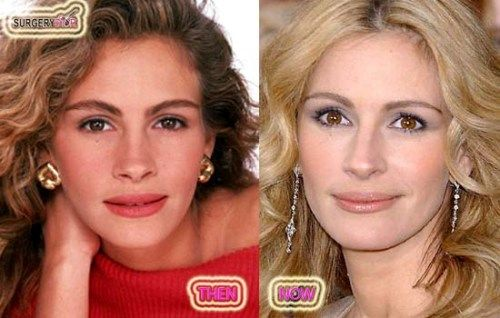 Plastic Surgery Before And After Julia Roberts Plastic
