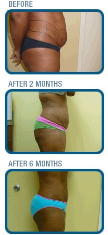 10 Images About How Much Does Liposuction Cost On