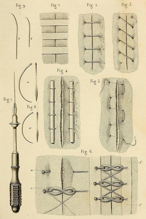 Wound closure techniques ca. 1855. Many of these are similar to basic leatherwork stitches, which I suppose makes sense!