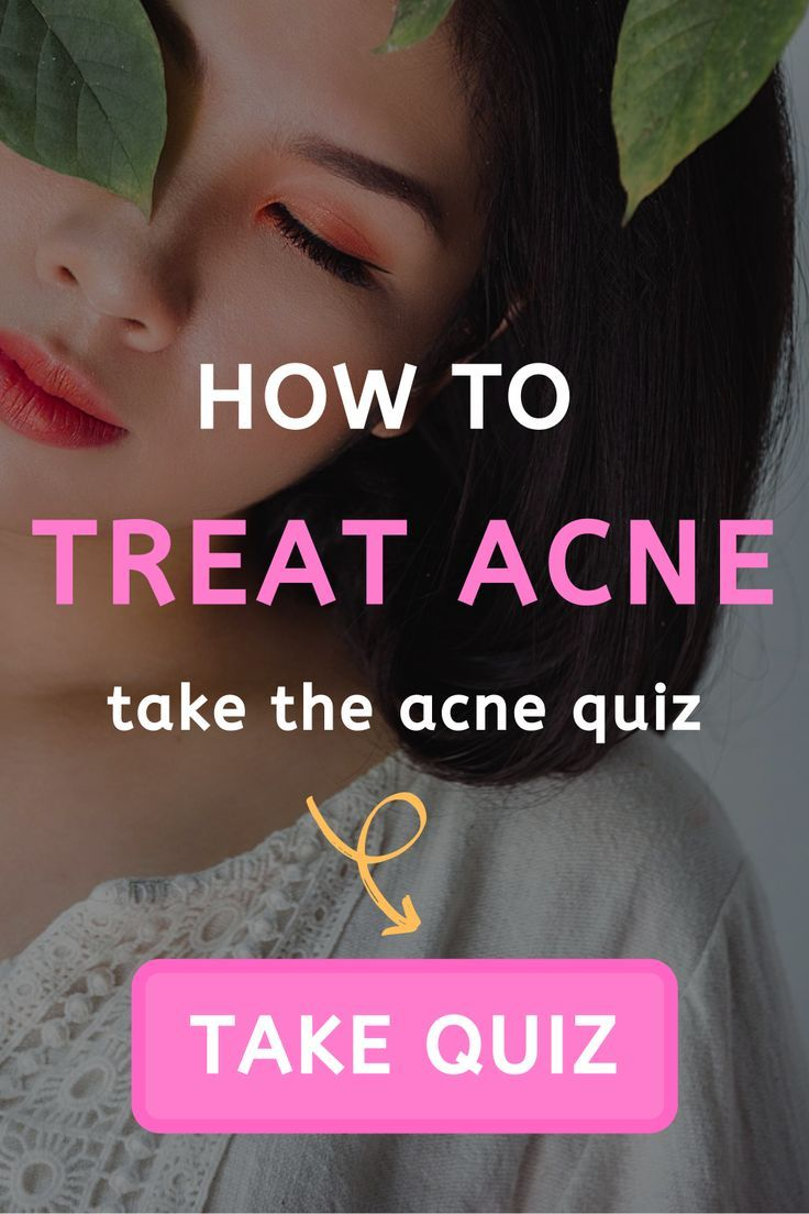 How To Treat The Acne Quiz Take It Now In 2020 Acne Quiz Acne Skin Quiz