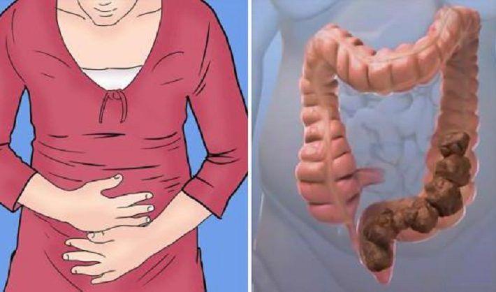 Škaredý tuk v črevách vám môže spôsobiť nepríjemnosti, vyčistite ich a dokonca schudnite, pomocou tohto zázračného nápoja - Mega chudnutie