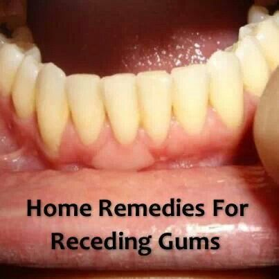Homeopathic Best Food For Teeth