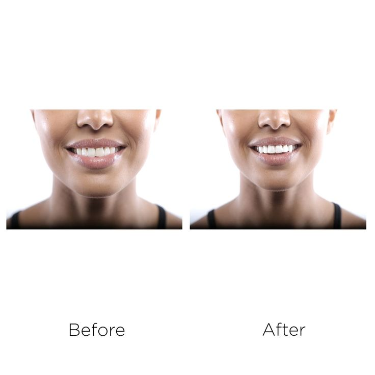 401642 - Tint Instant White Tooth Gloss  QVC PRICE: £14.99 + P&P: £2.95 in 2 of 3 options This Instant White Tooth Gloss from Tint is effective for up to 12 hours and takes 60 seconds to produce a brighter smile with no shade variation. Get your teeth food-, drink-, kiss- and party-proof with this instant-effect gel.  Works on natural teeth, caps, crowns and veneers  Contains:  1 x Instant Bright Teeth (7ml) - in a choice of Bright, White and Super White 30 x Tint Removal pads (2ml)