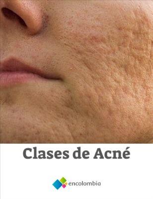 Existen diferentes clases de acné, a continuación enumeramos las principales:  Dermatitis Seborreica Su síntoma más característico es la aparición escamosa y rojiza que adquiere la piel, la cual va acompañada a veces por granos que se asemejan a los del acné.   Esto se debe a que las glándulas sebáceas se inflaman y la capa superficial reacciona hinchándose y escamándose. Si dichas glándulas se llegan a inflamar demasiado, podrán notarse incluso debajo de la piel. Superficial, Skin Care, Mantle, Seborrhoeic Dermatitis, Grains, Beauty Tips, Fur, Skincare Routine, Skins Uk