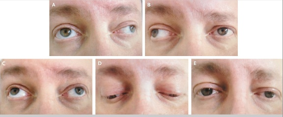 Bilateral Internuclear Ophthalmoplegia in Multiple Sclerosis - Getaw Worku Hassen, M.D., Ph.D., and Namita Bhardwaj, M.D.    N Engl J Med 2013; 368:e3January 17, 2013.   The patient had an adduction deficit in the right eye and nystagmus in the left eye on leftward gaze (Panel A). He also had an adduction deficit in the left eye and nystagmus in the right eye on rightward gaze (Panel B). Upward gaze (Panel C), downward gaze (Panel D), and normal primary position (Panel E) were unremarkable.