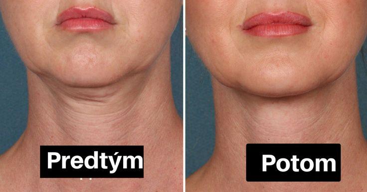 Druhá brada je problémem nejednoho člověka a přibývání na váze není jedinou příčinou. Mezi jinými nejčastějších viníky patří genetické predispozice, změna věku, ochabnutí kůže, rychlé hubnutí a také často skloněná hlava. Pokud to nechcete řešit chirurgickou cestou, samotná příroda nám nabízí