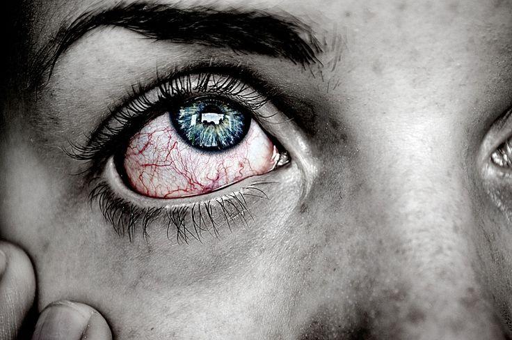 Misia obudziła się zlana potem. Podpachą znów odczuwała todziwne mrowienie iswędzenie. Jej ciało było spięte isztywne – czuła się jakby umierała… Mimo, żejej zdrowiu nic nie zagrażało ona wciąż nazbyt obsesyjnie wsłuchiwała się wswoje ciało. Każdy, nawet najmniejszy ból napewno przepowiadał chorobę. Wieczory były najgorsze – pragnęła snu, alenie mogła wpełni poczuć się bezpieczna… Noc …