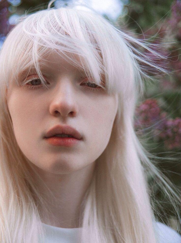 Альбинос человек фото глаза