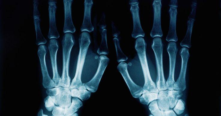 Tipos de equipos de rayos X. Los rayos X se utilizan de muchas maneras diferentes, pero todas son formas de radiación electromagnética. La radiación permite a los fotones pasar a través del cuerpo y grabar la imagen en la película. Las áreas sólidas, como el hueso denso, son de color blanco en una radiografía, mientras que las estructuras que contienen aire aparecerán de ...