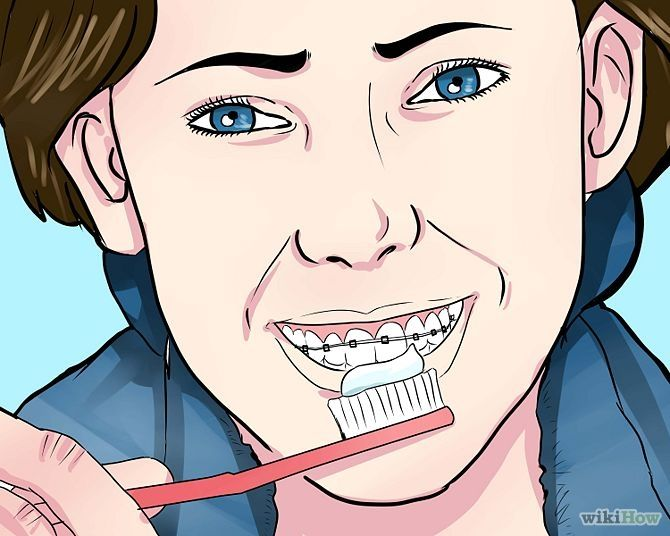 How to prepare on the day you get #braces
