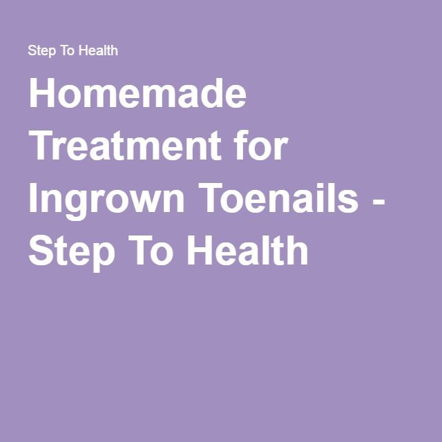 Homemade Treatment for Ingrown Toenails - Step To Health