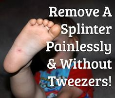 Remove A Splinter... Without Tweezers!