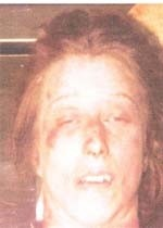 """JANE DOE. Olive Branch, MS 01/24/1985. Age: 20 to 35 years old. Height: 5'2"""" to 5'4"""". Weight: 110lbs. Hair: Red or Strawberry Blond. Sex: Female. Race: White. Scars and Marks: Had a scar on her left arm and a scar on her left hand. Had a tattoo of """"T.H.C."""" on her right ankle and a tattoo of """"REJ"""" or """"RET"""" on her left ankle. She had surgery on her left forearm, and tubal ligation (tubes tied) and is believed to have smoked heavily and bit her fingernails. Manner of death was ruled a homicide."""