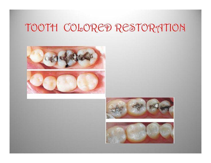 TOOTH  COLORED RESTORATION #DentalTreatment #DentalClinic #DentalSpecialist #kannur #kerala #dentalclinic #dentalcare