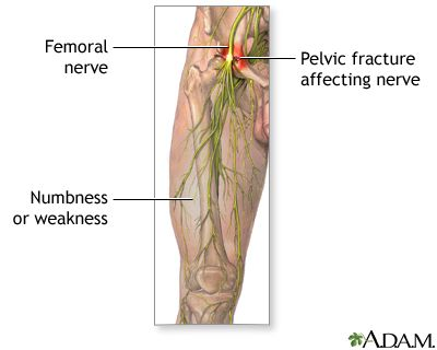 Femoral nerve damageThe femoral nerve is located in the leg and supplies the muscles that assist help straighten the leg. It supplies sensation to the front of the thigh and part of the lower leg. One risk of damage to the femoral nerve is pelvic fracture. Symptoms of femoral nerve damage include impaired movement and/or sensation in the leg, and weakness. If the cause of the femoral nerve dysfunction can be identified and successfully treated, there is a possibility of full recovery.