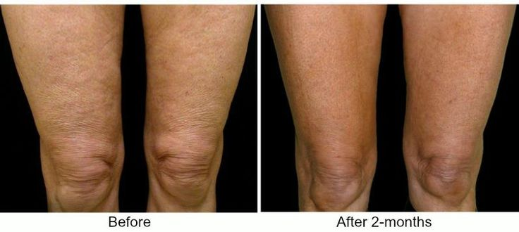 Tighten Loose Skin On The Legs And Knees With Thermage