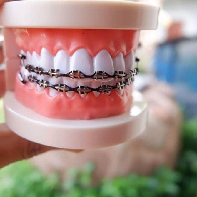 نقدم لكم عرض خاص على تقويم اسنان زينه تركيبه منزلي المتجر الوحيد و الاول في البحرين الي يوفره و توجد لدينا شحن جميع دول الخليج اصلي مق Planter Pots Planters
