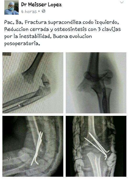 Pac. Fem. De 8a. Fractura supracondilea codo izquierdo. Cirugia con tres clavijas de 1.5mm