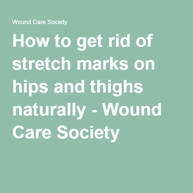 How to get rid of stretch marks on hips and thighs naturally - Wound Care Society