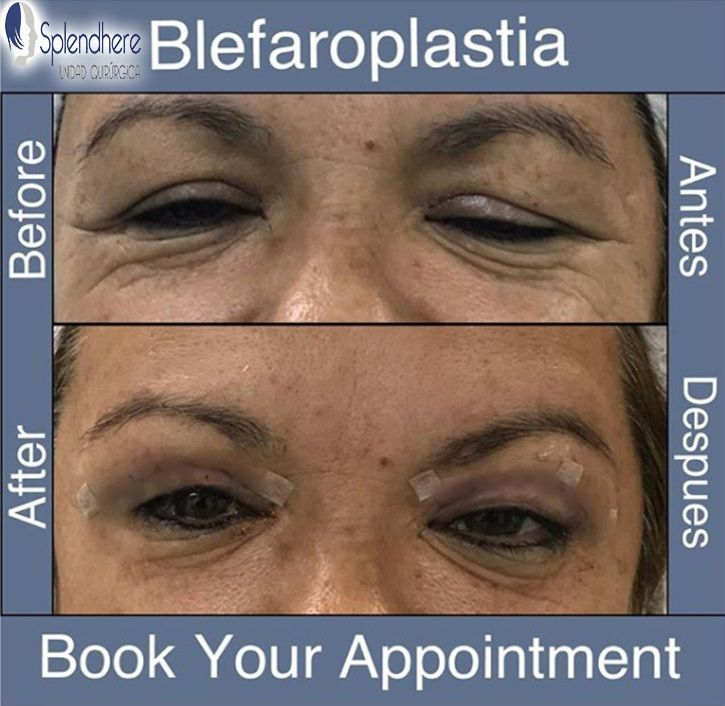 Blefaroplastia/Blepharoplasty , quick and nice results, call and book your appointment. Splendhere is the best clinic to get your body shape . Book your appointment ☎️USA 619-781 5602 ☎️MEX 664-971 0657  #splendhere @splendhereunidad #lipo #tummytuck #blepharoplasty #blefaroplastia #face