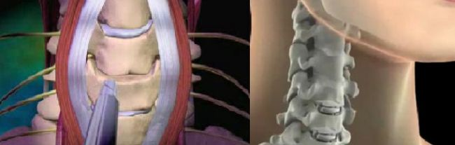 Your Treatment Guide in India for Cervical Spine Surgery