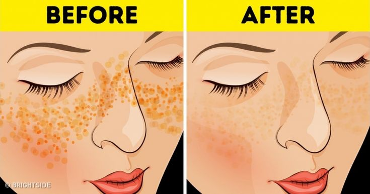 7 Tips From the Old Days to Get Rid of Acne Scars and Skin Imperfections