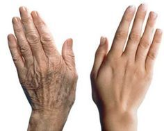 Signs of the Aging Hands: brown spot prevention
